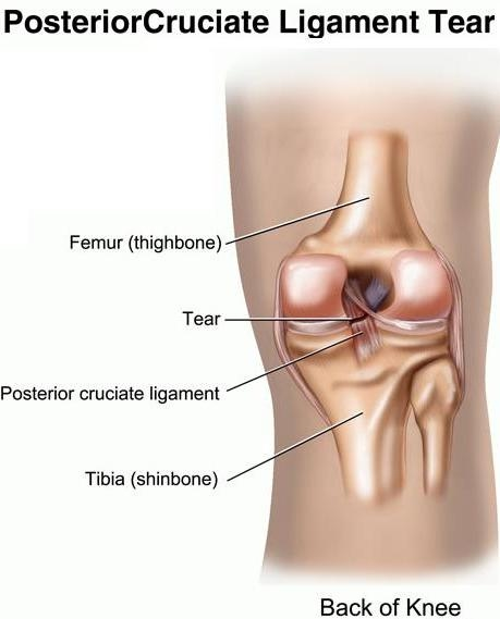 PCL Tear Treatment Bangalore