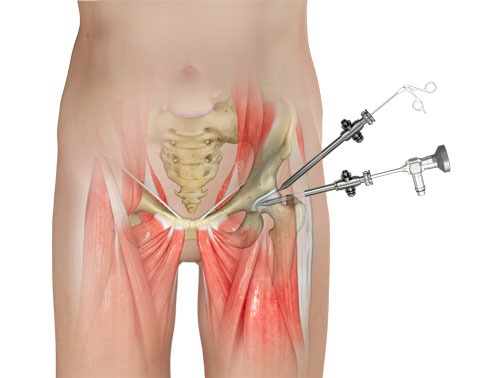 Hip Arthroscopy Surgery Bangalore
