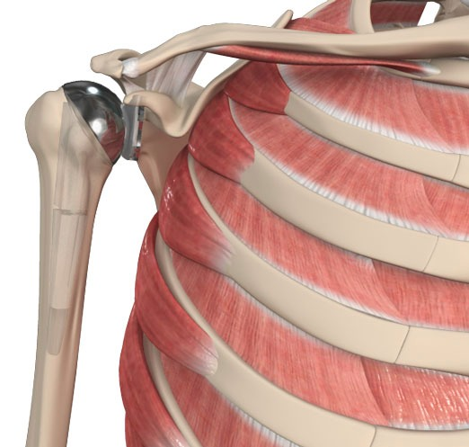 Shoulder Calcific Tendinitis Bangalore