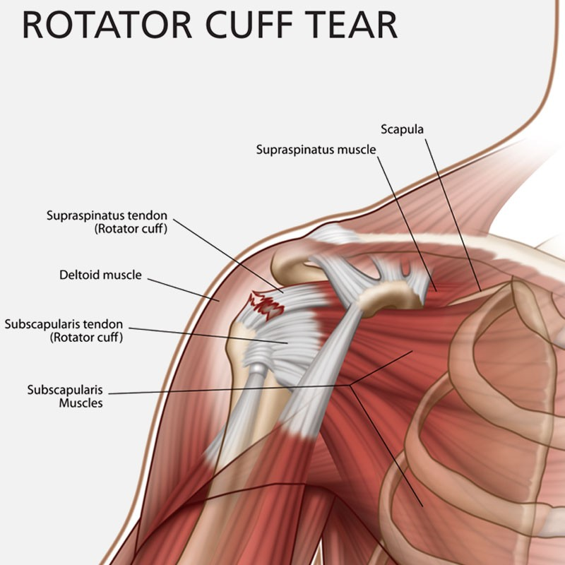 Rotator Cuff Injury Treatment Bangalore,India | Rotator Cuff Repair