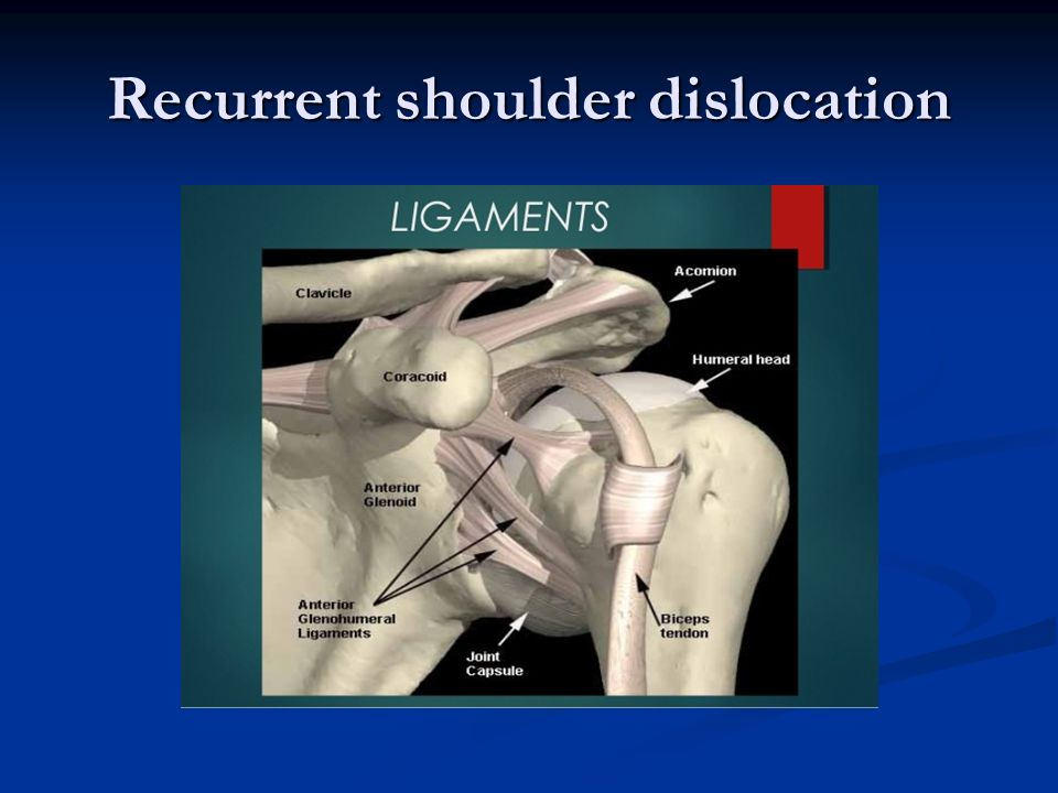 Shoulder Dislocation Treatment Bangalore