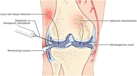 Septic Arthritis Treatment In Bangalore
